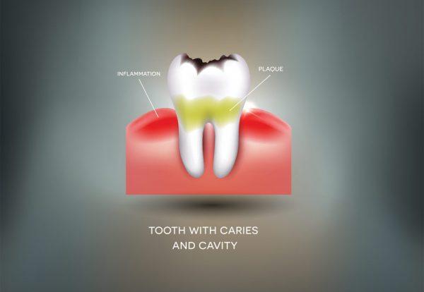 ruin-teeth-dentist-richmond